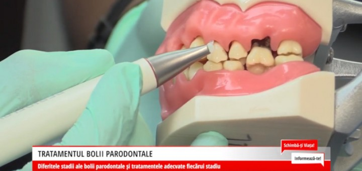 SVI - Tratamentul bolii parodontale - DentalMed - Artena Communications