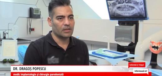 Solutii de implantologie orala